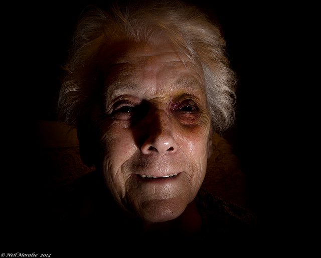 A woman, victim of domestic abuse, with a black eye