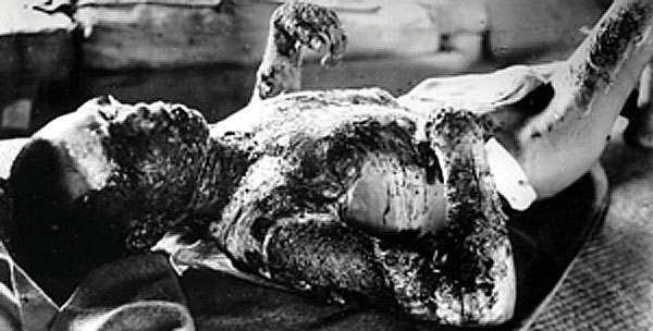 A disturbing picture of a man who was injured by the dropping of an atomic bomb. His skin is badly burned
